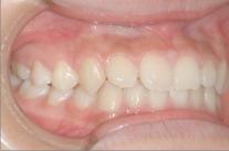 練馬区武蔵関、みたに歯科医院の症例紹介、13歳5ヶ月