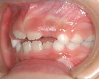 練馬区武蔵関、みたに歯科医院の症例紹介、6歳11ヶ月
