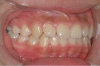 練馬区武蔵関、みたに歯科医院の症例紹介、12歳5ヶ月