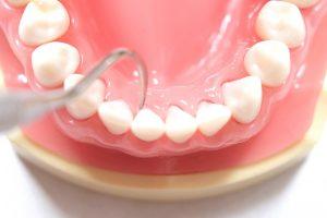 練馬区武蔵関、みたに歯科医院の無痛歯周病療法、YM治療
