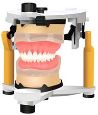 練馬区武蔵関、みたに歯科医院の最高品質の入れ歯、BPSデンチャー