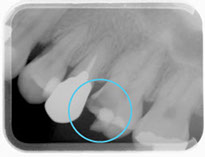 練馬区武蔵関、みたに歯科医院の神経に到達したむし歯症例案内
