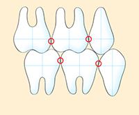 練馬区武蔵関、みたに歯科医院の良い咬み合わせ例