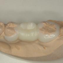 練馬区武蔵関、みたに歯科医院の新素材のブリッジ