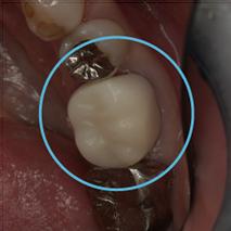 練馬区武蔵関、みたに歯科医院の自然の歯のように美しい仕上がり