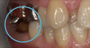 練馬区武蔵関、みたに歯科医院の歯のダメージを軽減するウェルデンツ